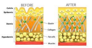 El colágeno y la piel