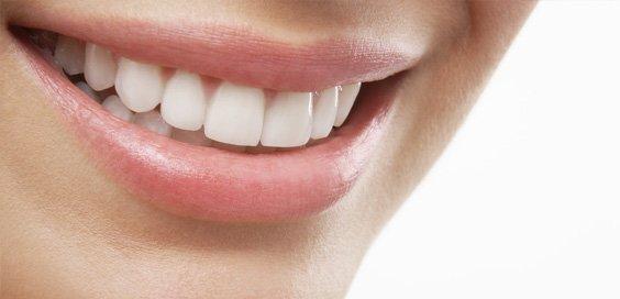 Estetica dental blanqueamiento