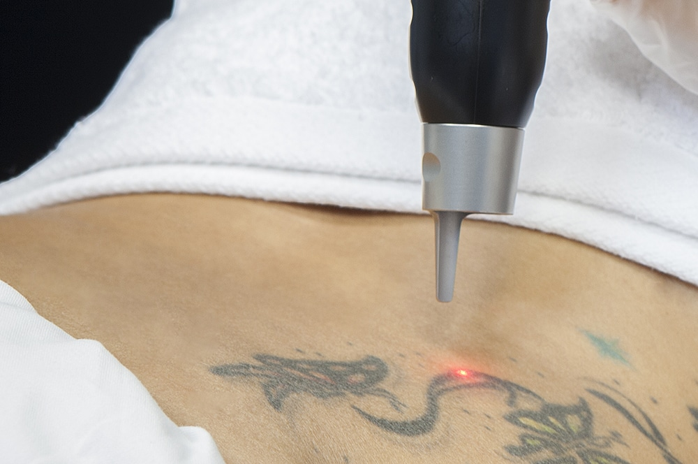 Laser Para Quitar Tatuajes Clínica Planas Blog