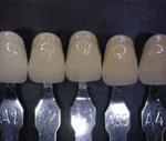 Estetica dental colores