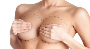cirugia de aumento de mama