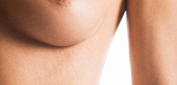 El estrógeno ha aumentado el pecho