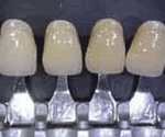 Estetica dental naranja amarillento