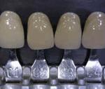 Estetica dental gris