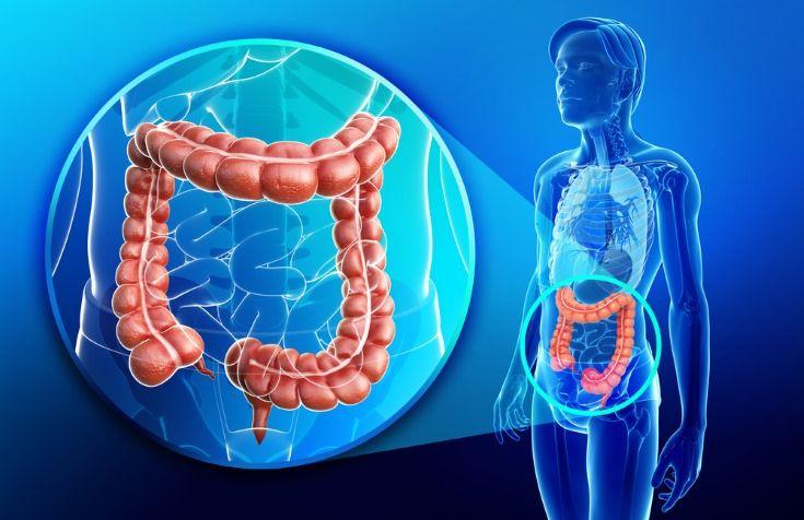 contra el cáncer de colon