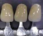 Estetica dental gris rosado