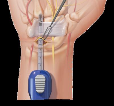 tecnica endoscopica tunel carpiano