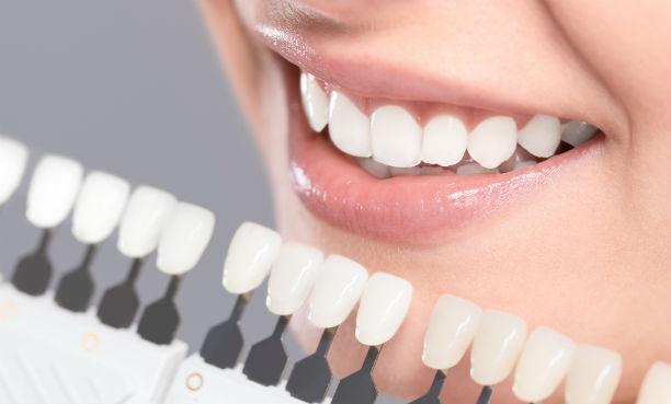 unidad estetica dental