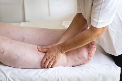 fisioterapia oncológica linfedema