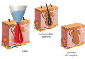 Laser foliculo piloso