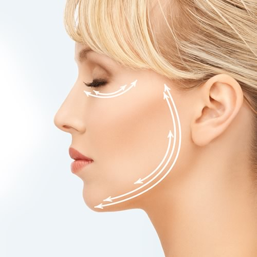 cirugia lifting facial