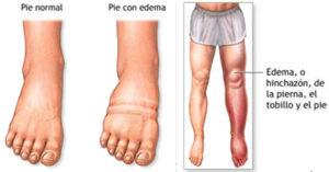 linfedema linfologia