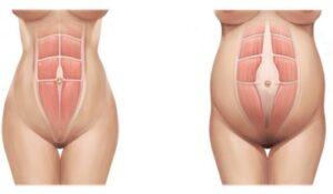 vientre plano musculatura abdominal