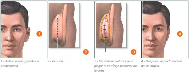 cirugía otoplastia