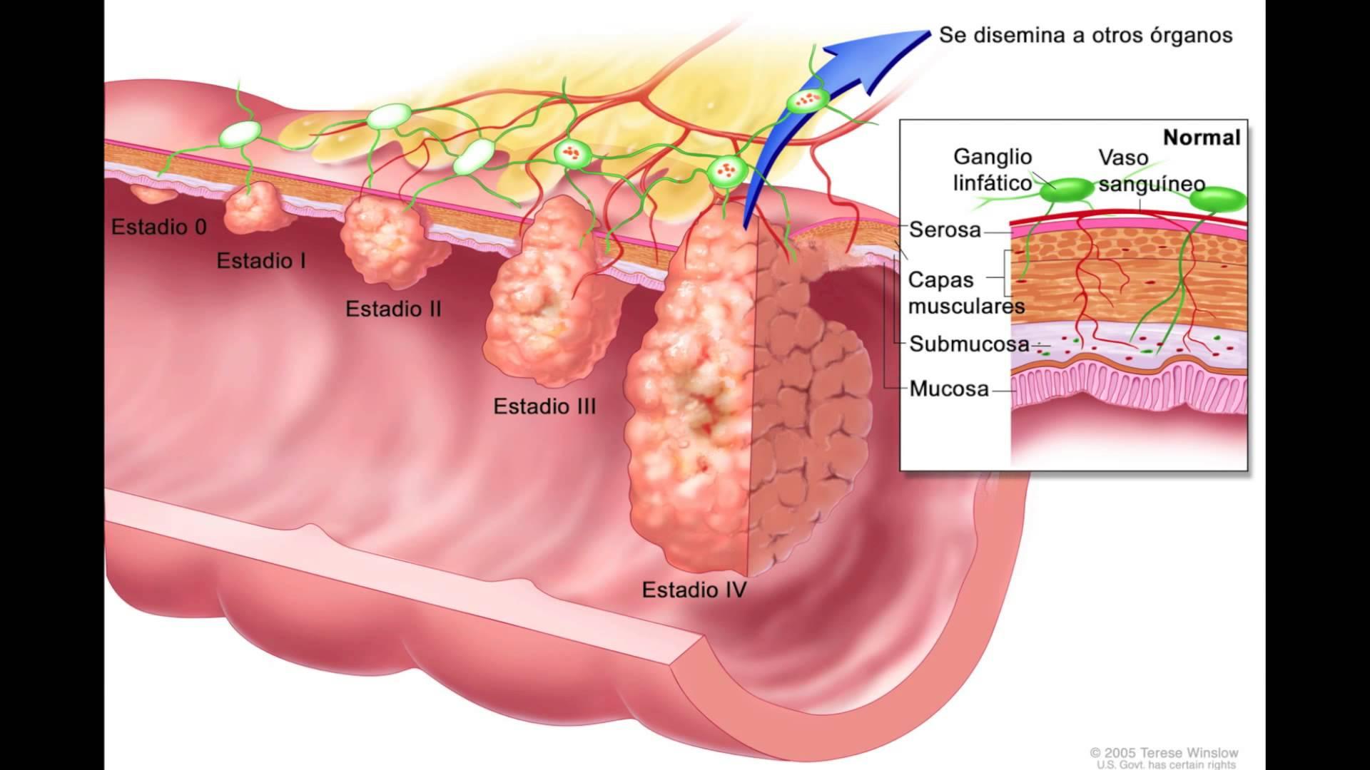 cáncer de colon y su desarrollo