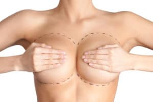 reduccion de pecho cirugia