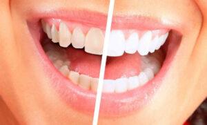 unidad estetica dental Clinica planas