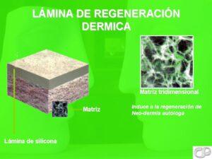 Lamina de Regeneracion Dermica