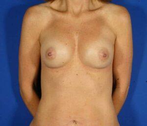 Aumento de pecho con inyecciones de grasa