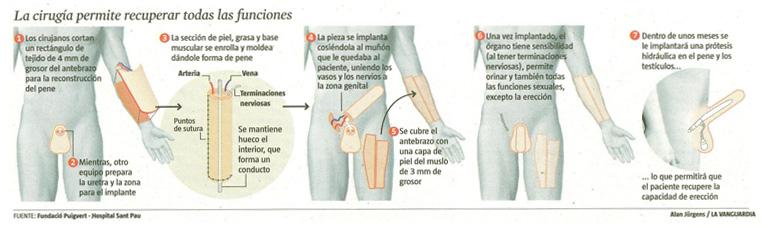 micropene operacion