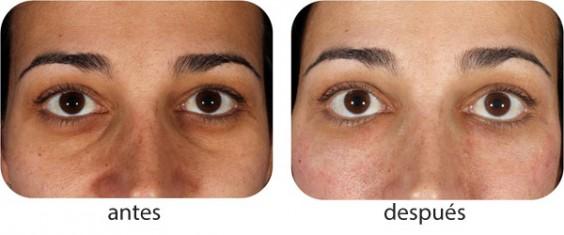 nanofat - antes y después