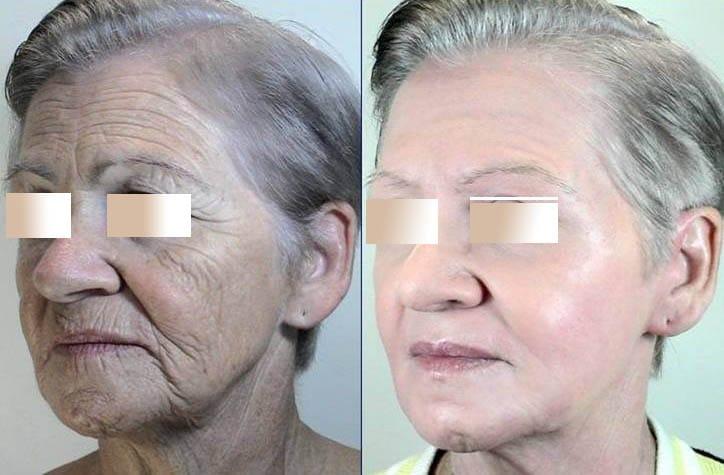 Caso 1. Antes y después de una paciente