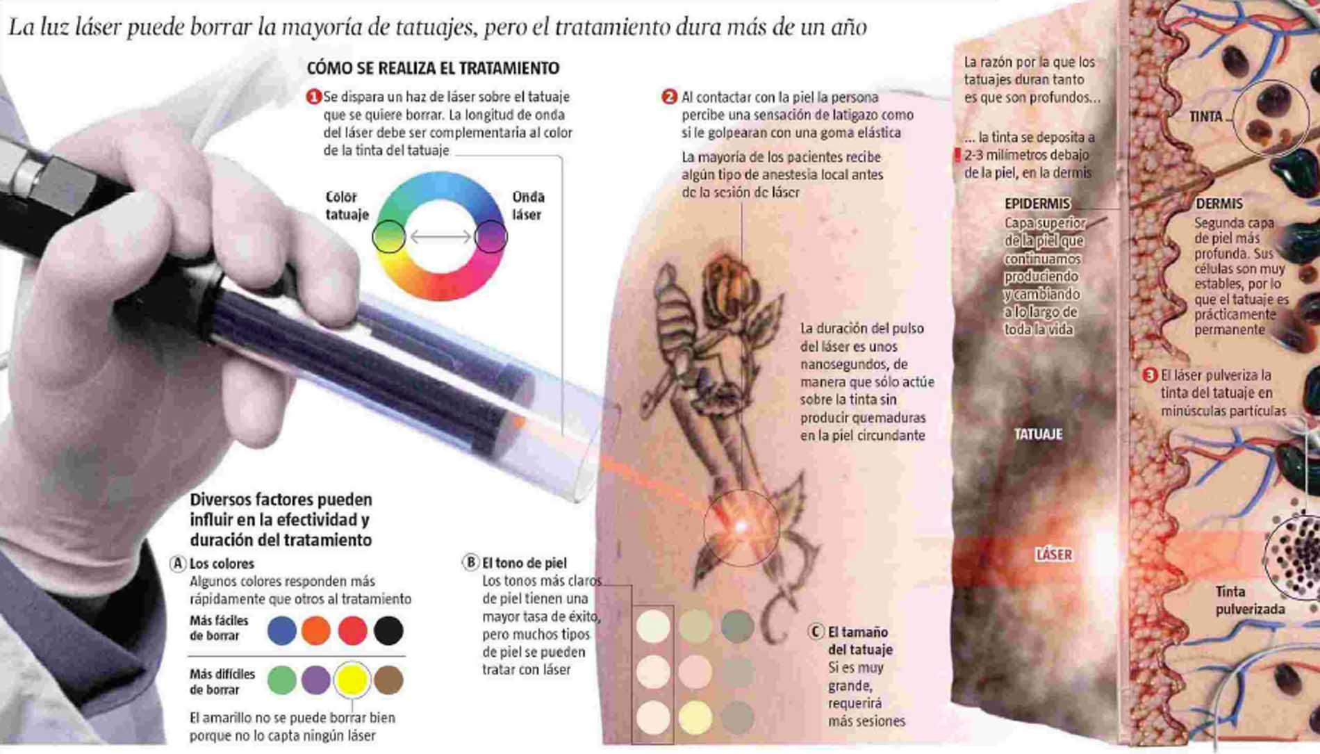 Recomendaciones Médicas Sobre Tatuajes Dr Jorge Planas Blog