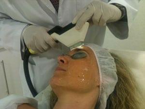 IPL rejuvenecimiento facial