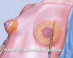 cirugía de aumento de mamas con grasa propia
