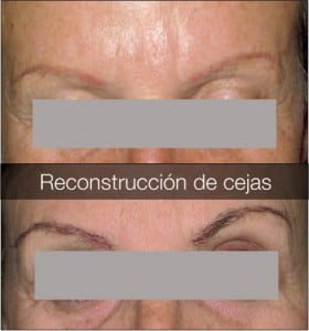 reconstrucción total y parcial de cejas