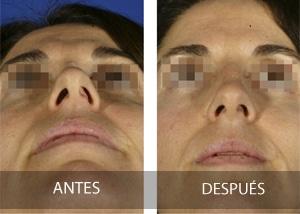 Nariz asimetrica tras rinoplastia