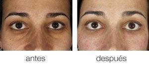 Eliminando Las Ojeras Oscuras Con Nanograft Blog Dr