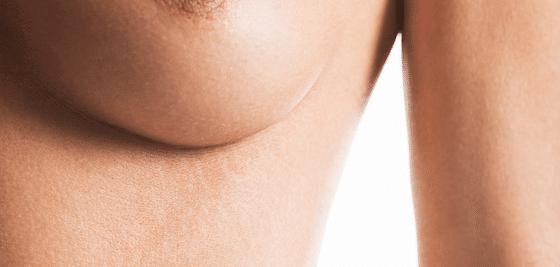 La operación plástica el pecho implantanty el coste