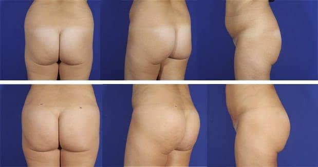 Aumento de glúteos | ¿con grasa propia o con prótesis? - Dr. Planas