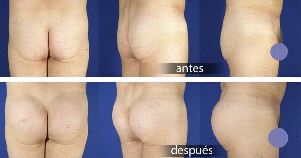 aumento de glúteos con prótesis