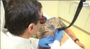 cómo eliminar tatuajes con láser