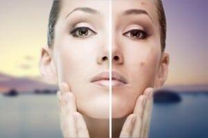 acné-antes y después