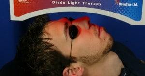 terapia lumínica con luz roja-acné