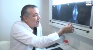 el Dr. Jorge Planas explicando la ginecomastia