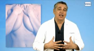 educción mamaria en corpore sano