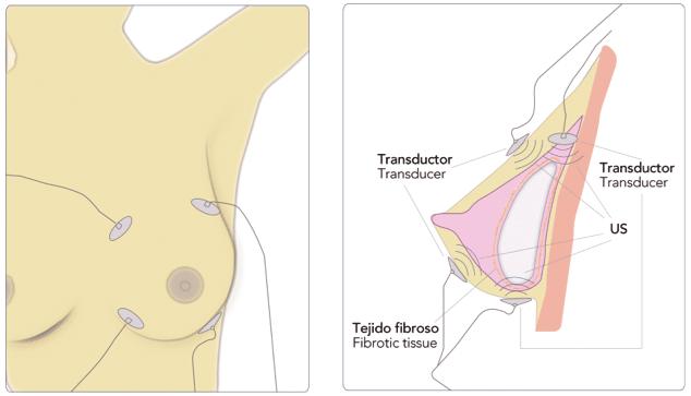 tratamiento preventivo de la contractura capsular