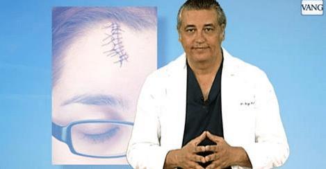 cómo disimular queloides y cicatrices hipertróficas