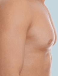 Exceso mamario masculino foto