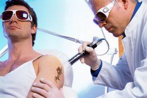 eliminar los tatuajes laser