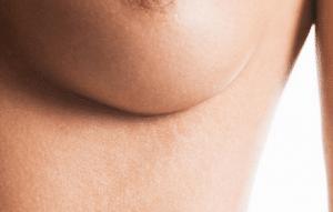aumento de pecho, cuando debo cambiar los implantes