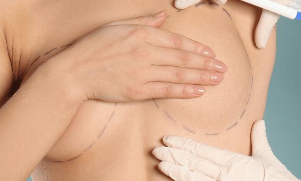 aumento-mamario-hibrido