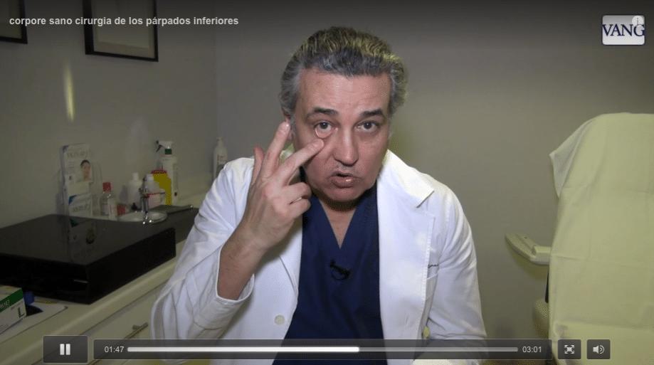 blefaroplastia inferior transconjuntival |o como eliminar las bolsas de los ojos