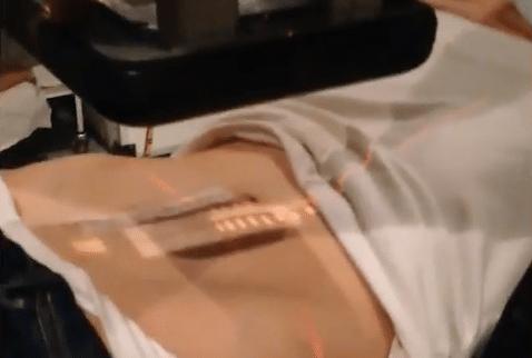 braquiterapia-para-el-tratamiento-de-queloides