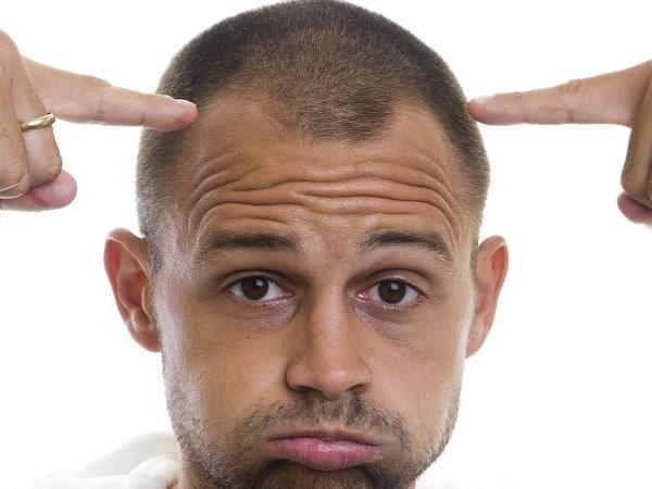caida del cabello factores