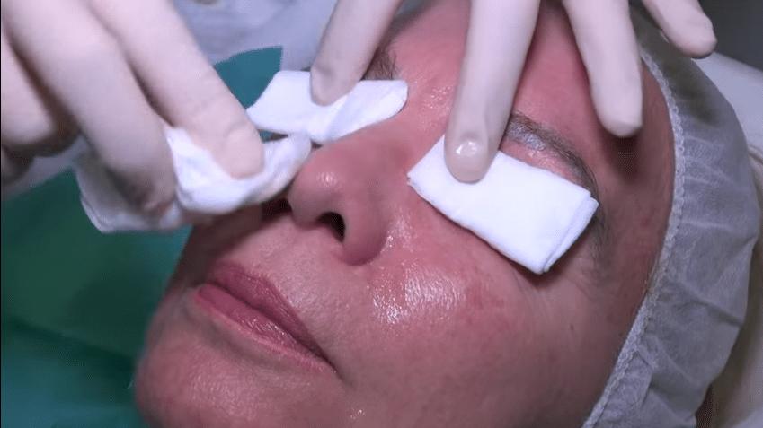 como combatir los poros abiertos
